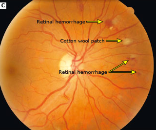 hypertensive retinopathy pdf